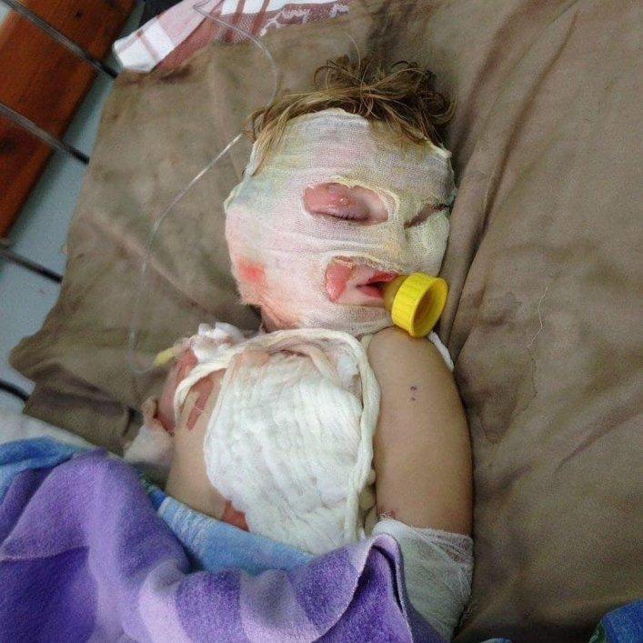 В Мелитопольском районе ребенок получил серьезные ожоги , фото-2