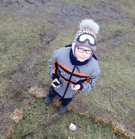 Маленькому жителю Мелитополя срочно нужна помощь , фото-1